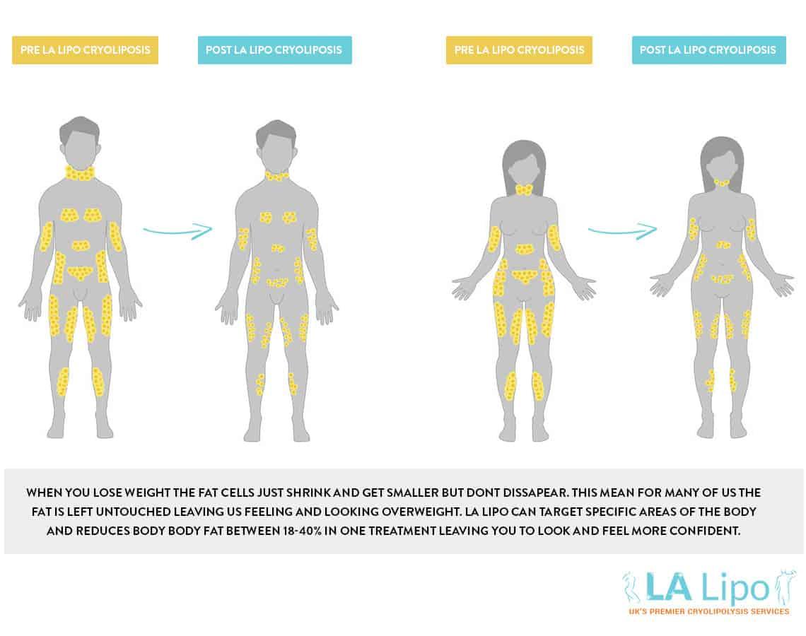 liposuction areas diagram